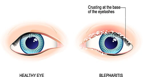 CBG For Blepharitis