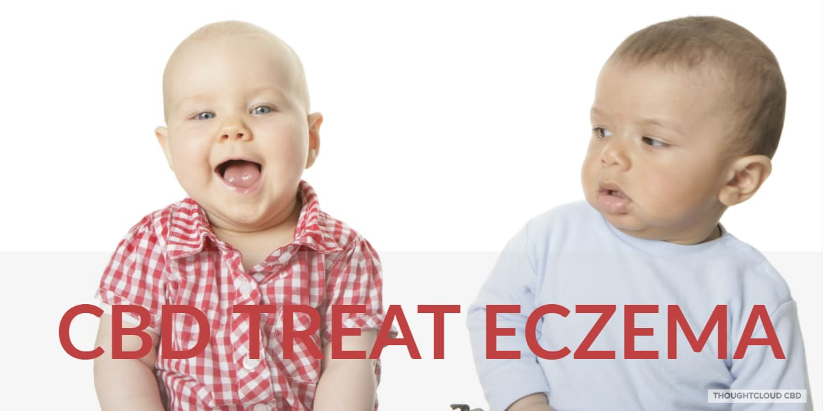 CBD Treat Eczema Effectively | Common Childrens Itchy Skin