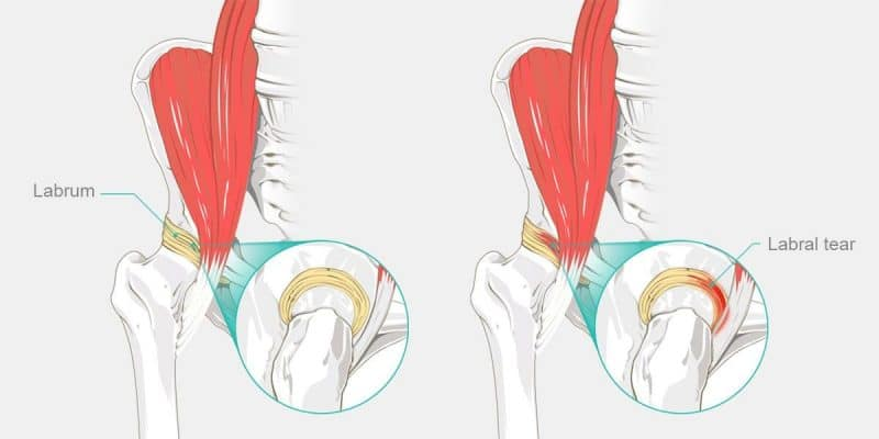 CBD In Snapping Hip Syndrome